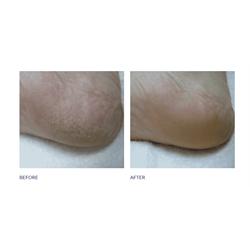 FL Dry Skin Formula #2 119g -19.99 (daily maintenance)